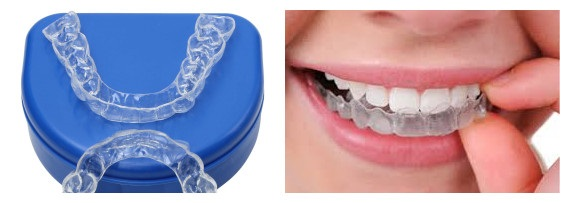 How to Maintain Orthodontia as an Adult